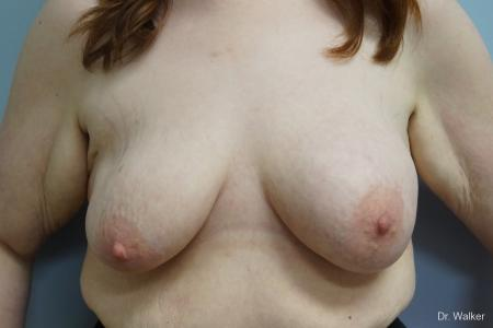 Breast Lift And Augmentation: Patient 1 - Before Image 1