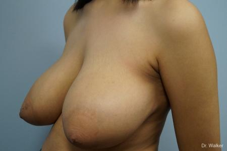 Breast Reduction: Patient 1 - Before Image 4