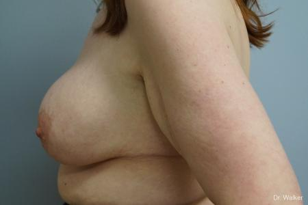 Breast Lift And Augmentation: Patient 1 - Before 2