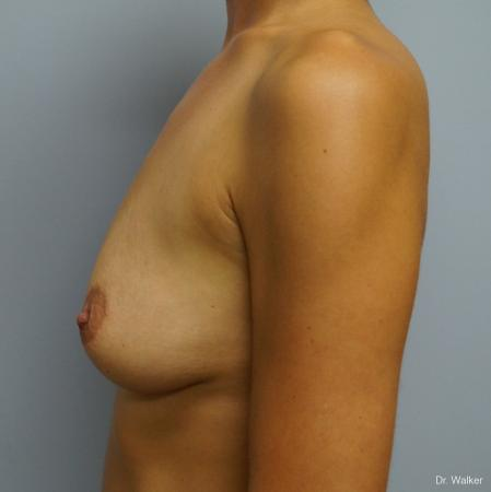 Breast Augmentation: Patient 6 - Before 4