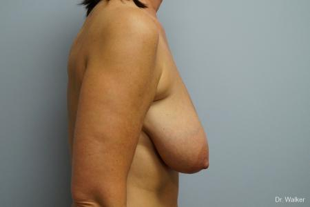 Breast Lift: Patient 1 - Before Image 4