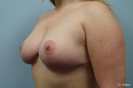 Breast Lift: Patient 2 - After Image 5