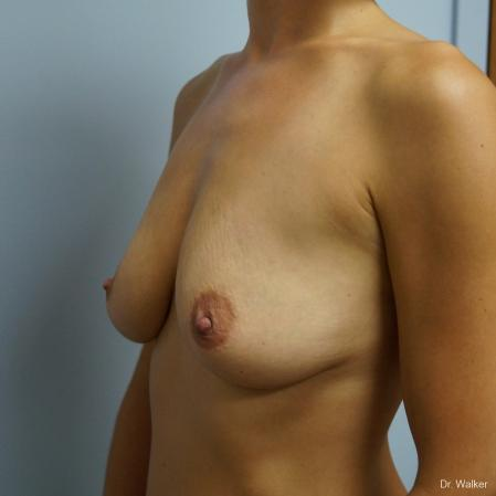 Breast Augmentation: Patient 6 - Before 2