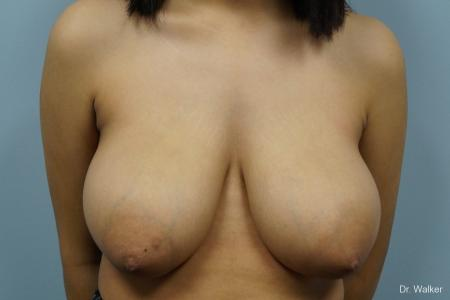 Breast Reduction: Patient 1 - Before 1