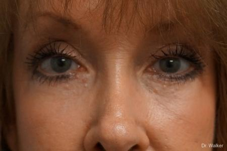 Blepharoplasty: Patient 1 - After Image