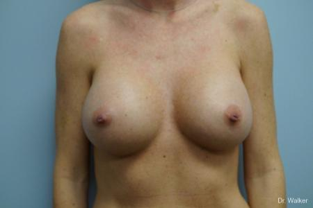 Breast Augmentation: Patient 4 - After Image 1