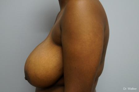 Breast Reduction: Patient 5 - Before Image 2