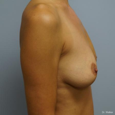 Breast Augmentation: Patient 6 - Before and After 5