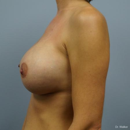 Breast Augmentation: Patient 6 - After 4