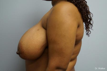Breast Reduction: Patient 4 - Before and After 5
