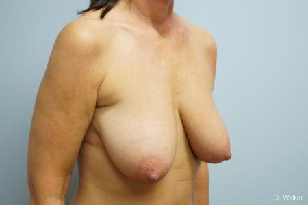 Breast Lift: Patient 1 - Before Image 2