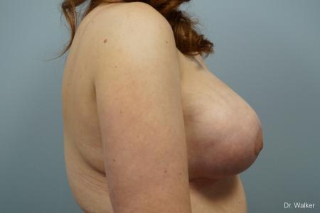 Breast Lift And Augmentation: Patient 1 - After Image 4
