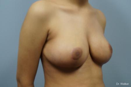 Breast Reduction: Patient 1 - After Image 5
