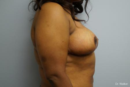 Breast Reduction: Patient 4 - After Image 3