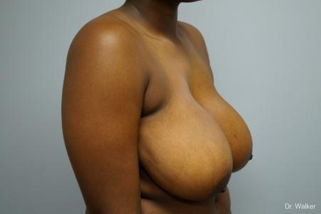 Breast Reduction: Patient 5 - Before and After Image 5