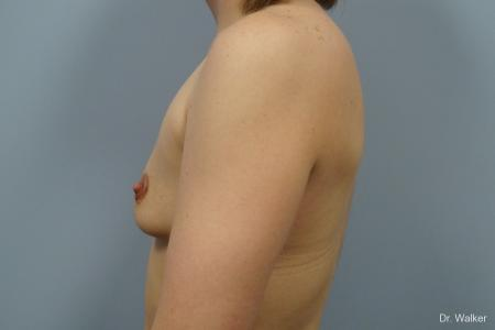 Breast Augmentation: Patient 3 - Before and After 5