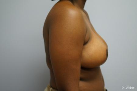 Breast Reduction: Patient 5 - After Image 4