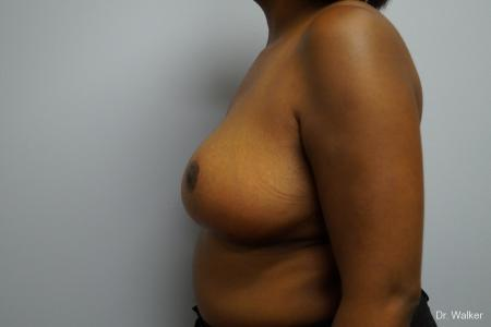 Breast Reduction: Patient 2 - After Image 4