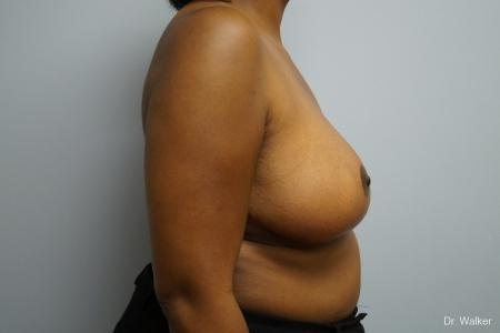 Breast Reduction: Patient 2 - After Image 5