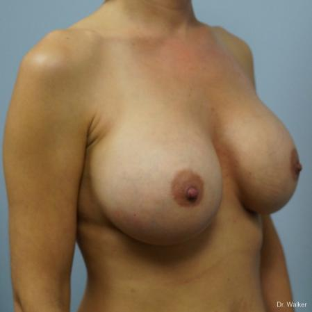 Breast Augmentation: Patient 6 - After 3