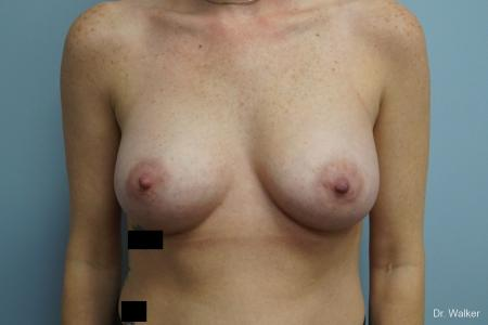 Breast Augmentation: Patient 7 - After Image 1