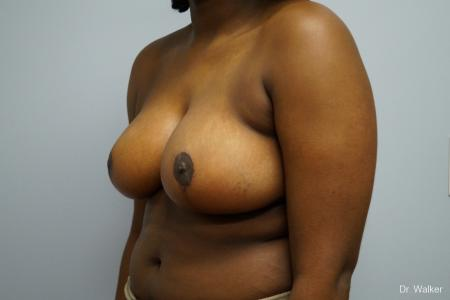 Breast Reduction: Patient 5 - After Image 3