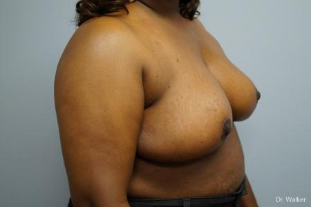 Breast Reduction: Patient 7 - After Image 4