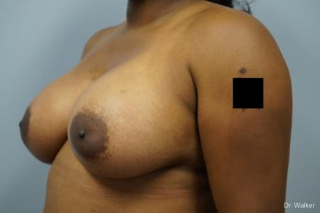 Breast Augmentation: Patient 8 - After Image 3
