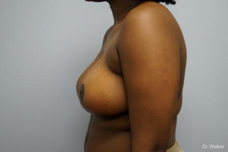 Breast Reduction: Patient 5 - After Image 2