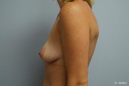 Breast Augmentation: Patient 7 - Before Image 4