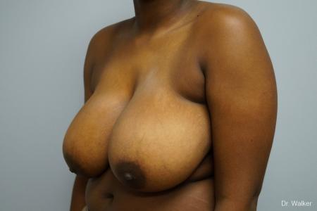 Breast Reduction: Patient 5 - Before Image 3