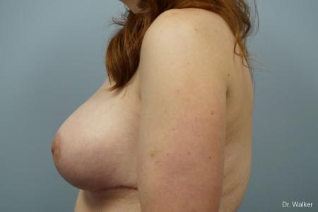 Breast Lift And Augmentation: Patient 1 - After 2