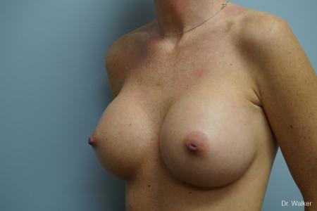 Breast Augmentation: Patient 4 - After 3