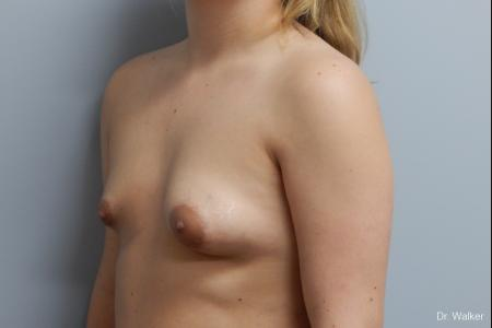 Breast Asymmetry: Patient 1 - Before Image 2