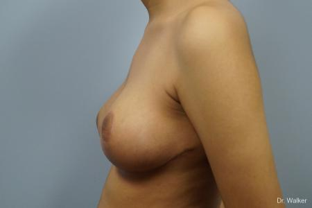 Breast Reduction: Patient 1 - After Image 2