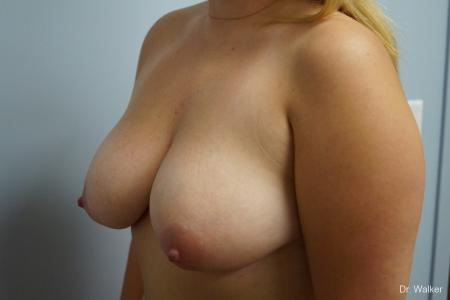 Breast Lift: Patient 2 - Before and After Image 5