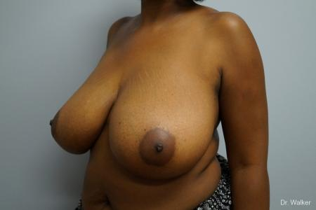 Breast Reduction: Patient 2 - Before Image 2