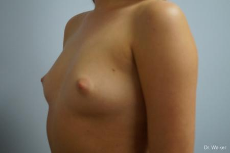 Breast Augmentation: Patient 5 - Before and After Image 2