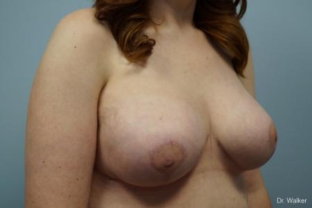 Breast Lift And Augmentation: Patient 1 - After 5