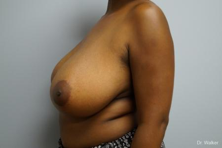 Breast Reduction: Patient 2 - Before Image 4