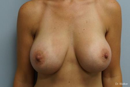 Breast Augmentation: Patient 9 - After Image 1
