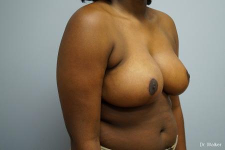 Breast Reduction: Patient 5 - After Image 5