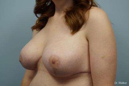 Breast Lift And Augmentation: Patient 1 - After 3
