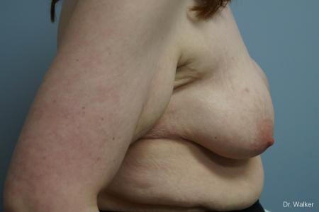 Breast Lift And Augmentation: Patient 1 - Before Image 4