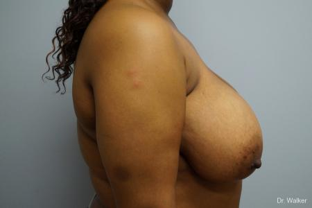 Breast Reduction: Patient 4 - Before Image 3