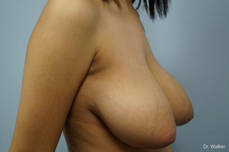 Breast Reduction: Patient 1 - Before and After Image 5