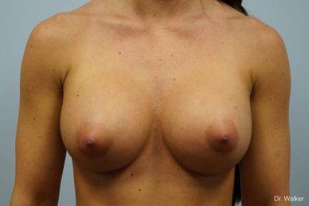 Breast Augmentation: Patient 1 - After Image 1