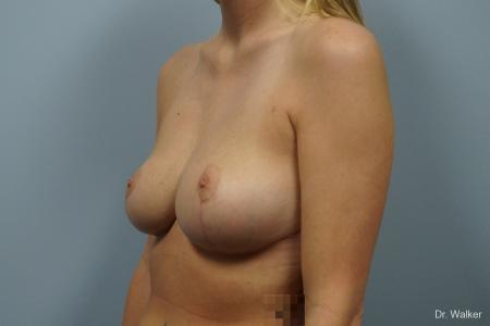 Breast Reduction: Patient 3 - After Image 3