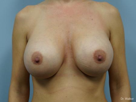 Breast Augmentation: Patient 6 - After 1