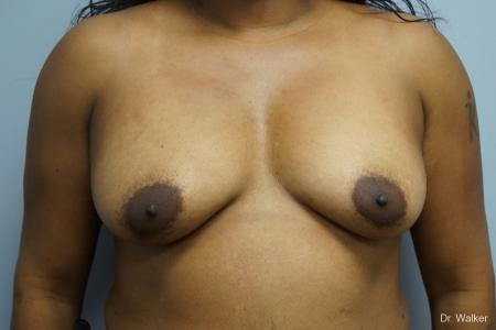 Breast Augmentation: Patient 8 - Before Image 1